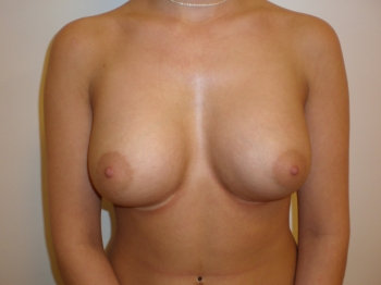plastikkirurgi bryster se abe com